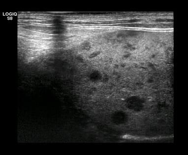 High-resolution imaging of metastatic lymphoma