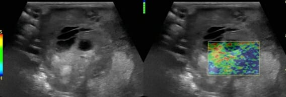 Elastography image suggestive of malignant cancer within the liver of a dog