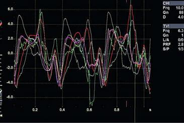 Screenshot of Q analysis graphs