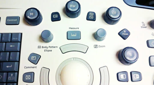 Buttons and knobs on an ultrasound machine