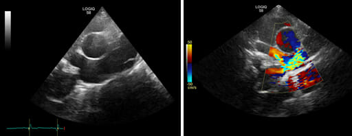 Two ultrasound images with colour indications for detecting congenital abnormalities