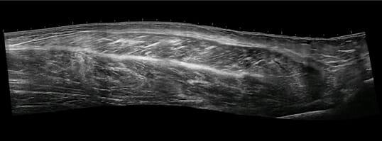 Panoramic imaging of a lower limb